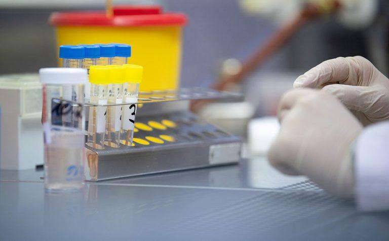 Україна отримала тест-систему для виявлення нового коронавірусу